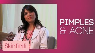 How To Get Rid Of Pimples & Acne || Skincare || Skinfiniti With Dr.Jaishree Sharad