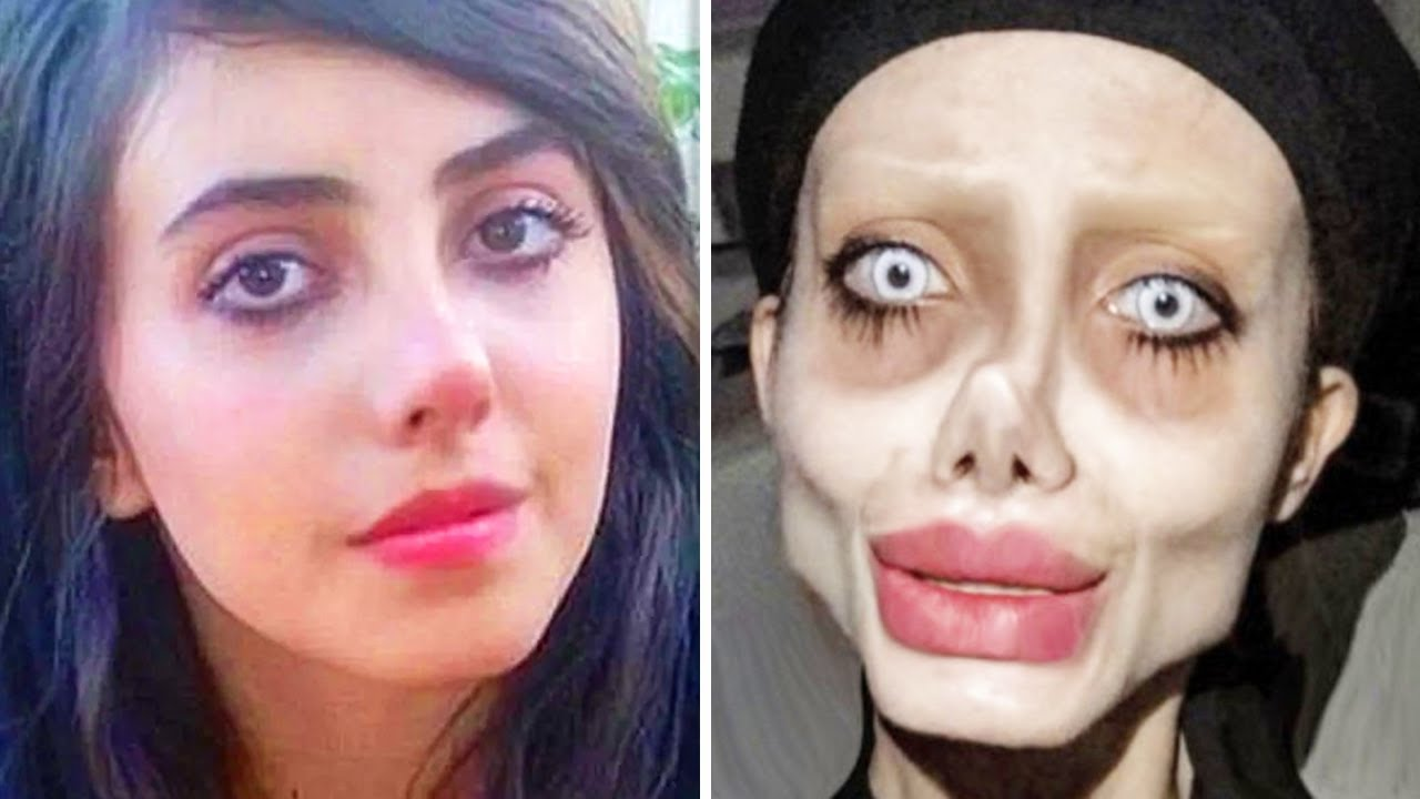 Download 10 People Who Took Plastic Surgery TOO Far…