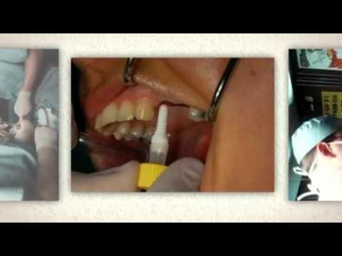 Dental Implants Daytona Beach   CALL LEO VIDAL @ 800-535-4072