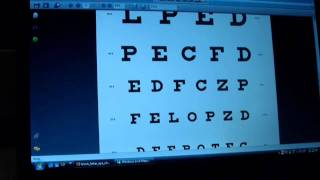 AnD4D Eye Test Before & After Laser Eye Surgery