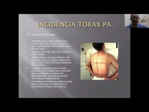 PUNÇÃO VENOSA 1 from YouTube · Duration:  5 minutes 11 seconds