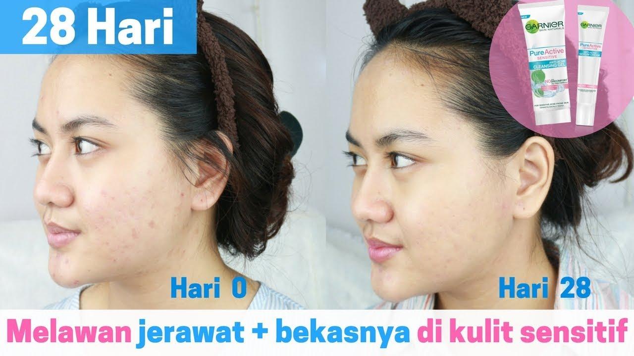 28 Hari Coba Skincare Untuk Sensitive Acne Prone Skin Kulit Bioaqua Pure Rejunation Mask Sheet Masker Jerawat Sensitif Yang Mudah Berjerawat