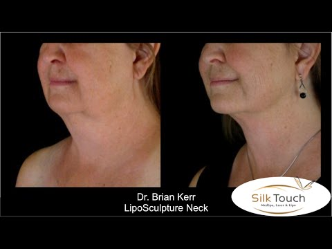 Liposuction Boise, Idaho   Smart Lipo in Boise, ID   Vaser Lipo