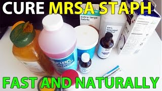 Cure Mrsa Staph Infection Fast Natural Treatment
