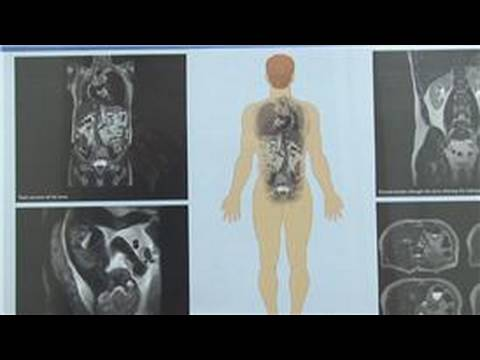 Radiology : What Is Interventional Radiology?