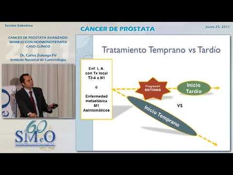 síntomas de la próstata en tagaloo