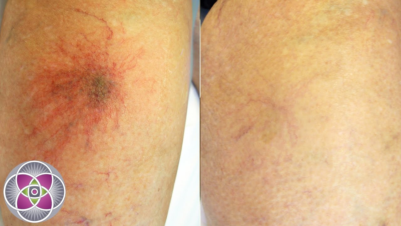 Laser Spider Vein Treatment on the Legs