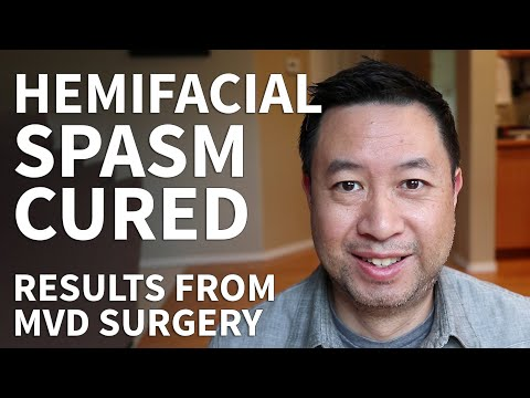 Hemifacial Spasm Surgery Recovery - Hemifacial Spasm Stories And MVD Surgery Cure