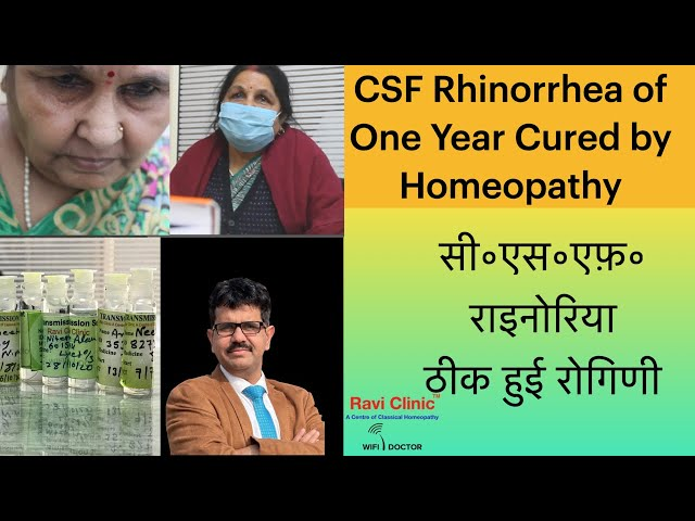 CSF Rhinorrhea of One Year Cured by Homeopathy