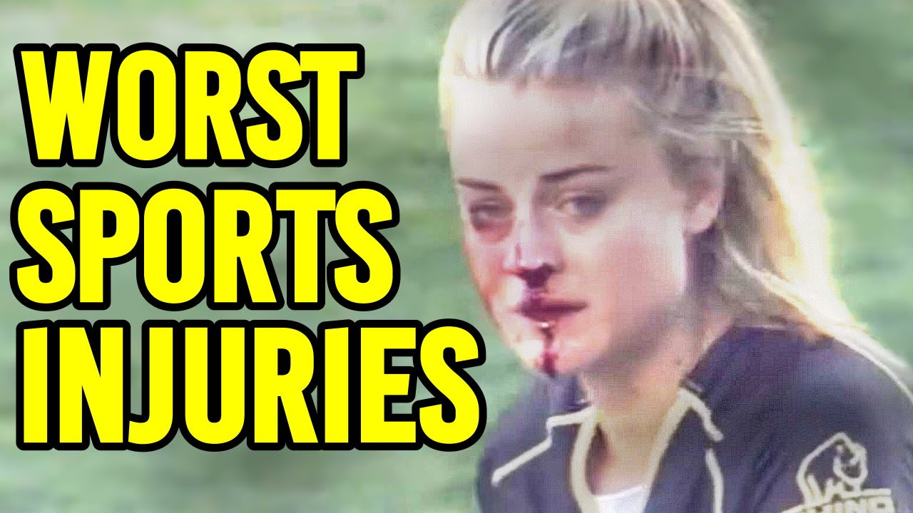 Download 8 More Worst Sports Injuries Caught On Live Tv