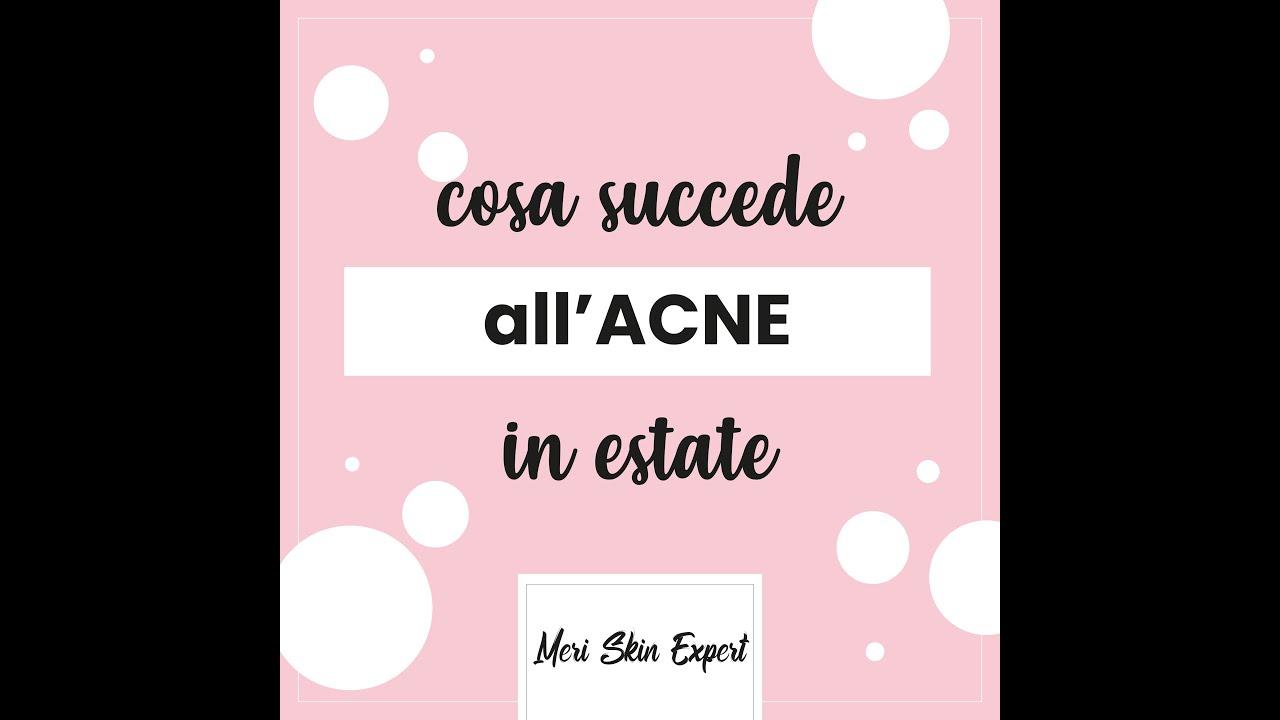 Cosa succede all'acne in estate