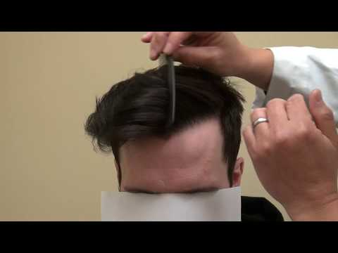 Hairline Surgery by FUE Hair Transplant Follicular Unit Extraction by Dr. Diep
