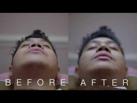 Filler Hidung / Nose Filler Bandung & Jakarta