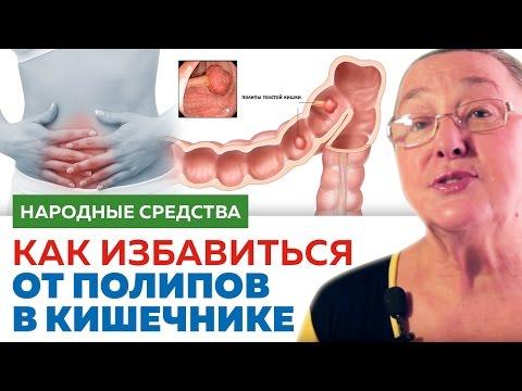 Как убрать полипы в кишечнике
