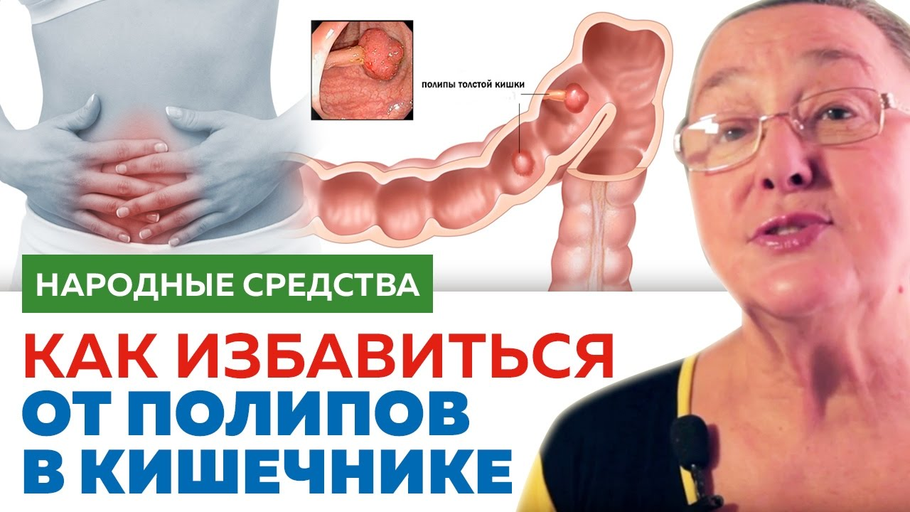 Народные средства от полипов в кишечнике