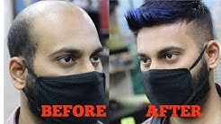 A non surgical hair fixing , hair wig, patchig center in india, RIZY 9582581323