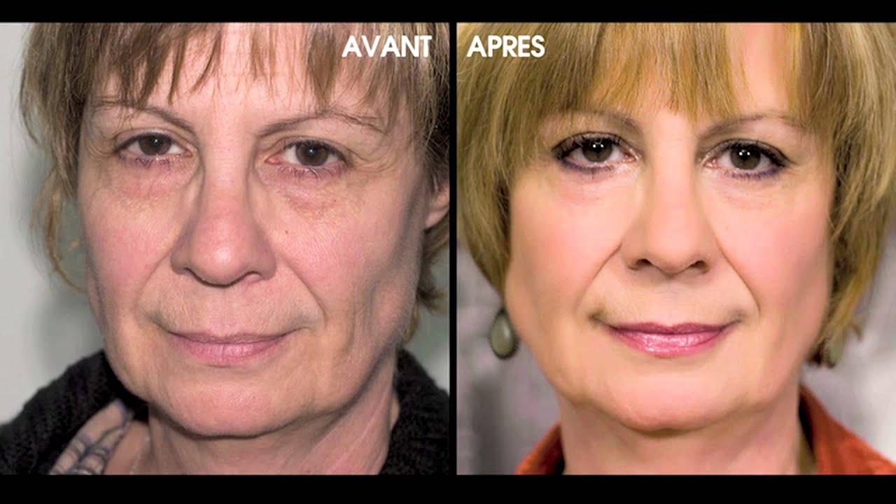 Gold collection larune masque or visage bouche et - Contour des yeux acide hyaluronique ...
