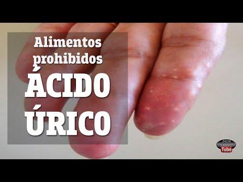 Leche entera y acido urico