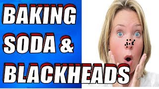 How To Remove BLACKHEADS Instantly With BAKING SODA