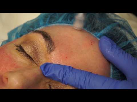 Microneedling at Austin Plastic Surgery Institute & Skin Care Clinic