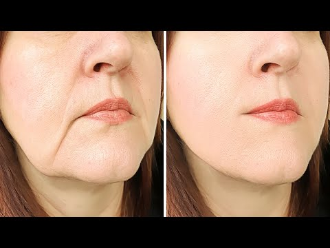 How To Tighten Loose Skin (Saggy) On Your Face