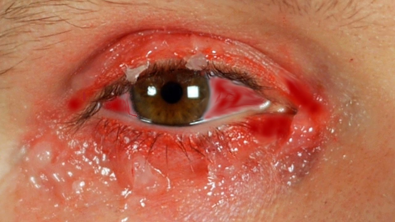 Pink Eye Pictures, Images & Photos | Photobucket