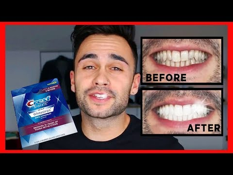CREST 3D WHITESTRIPS, EASY AND CHEAP TEETH WHITENING | Deniz F.