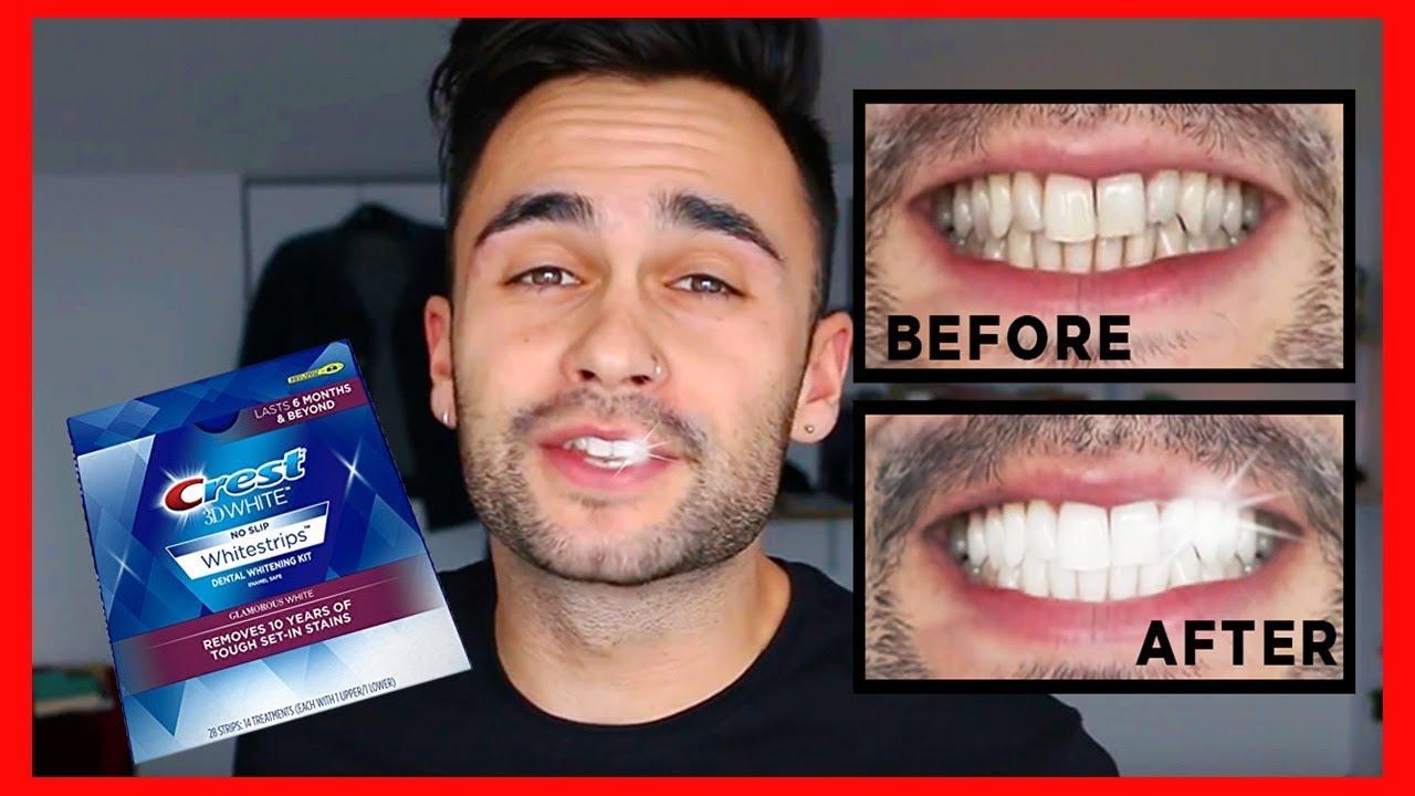 Crest 3d Whitestrips Easy And Cheap Teeth Whitening Deniz F Youtube