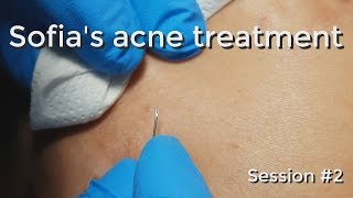 Sofia's Acne Treatment: Session #3 - Part I
