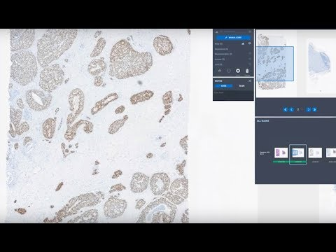Roche launches uPath enterprise software with improved speed, performance and usability for digital pathology