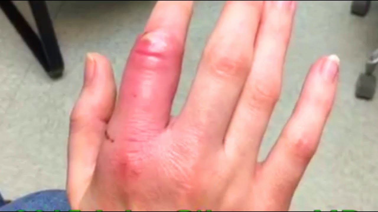 how to get infection out of finger