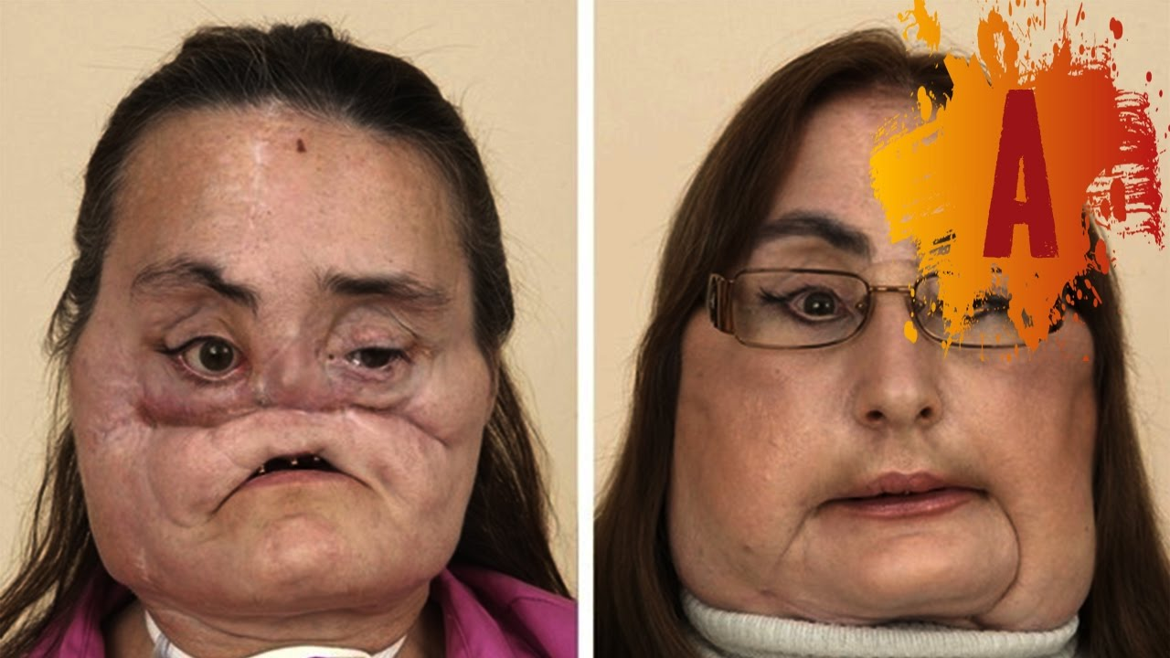 Facial First Transplant World