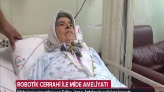 Robotik Cerrahi ile Mide Mide Kanseri Ameliyatı