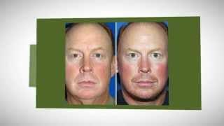 Rhinoplasty Surgery Finders Eyelids San Francisco/Alameda Thumbnail