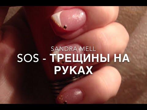 0 - Тріщини на шкірі пальців рук близько нігтів