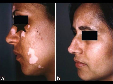 Vitiligo NYC - (212)-644-6454 - Vitiligo Treatment NYC - New York, NY