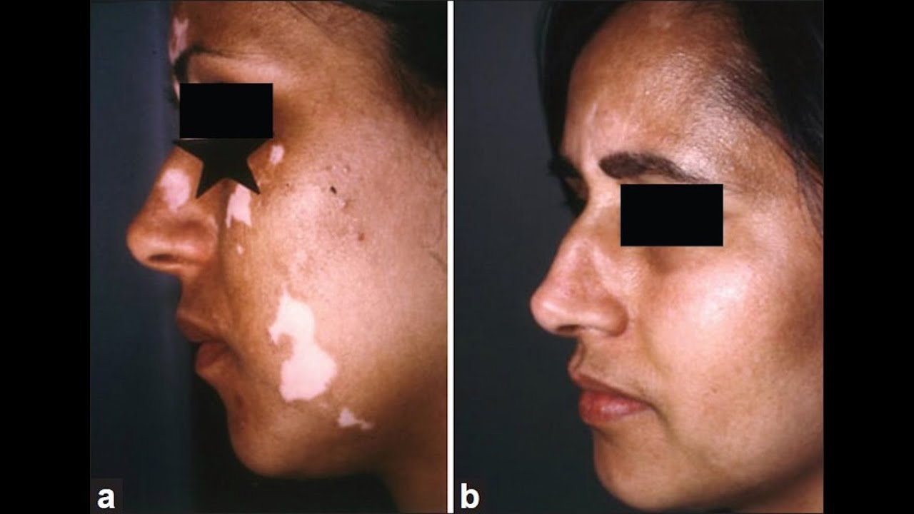 Vitiligo Nyc 212 644 6454 Vitiligo Treatment Nyc
