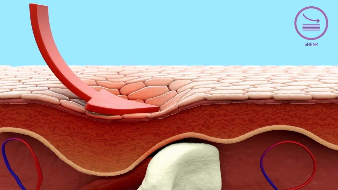 medium resolution of how mepilex border dressings help in pressure ulcer prevention