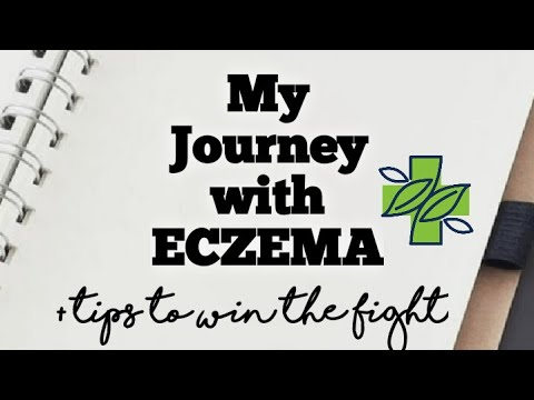 Eczema 101:MY STORY (w/ pics) | I cleared up my skin!| +Useful tips and treatments! (VERY DETAILED)🌱