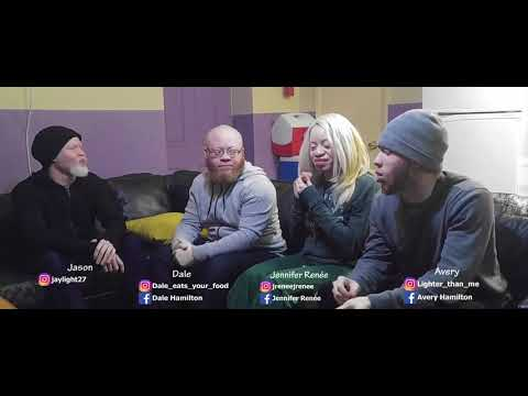 Life with Albinism Podcast Episode 3 Dating and relationship with albinism. The good and the bad