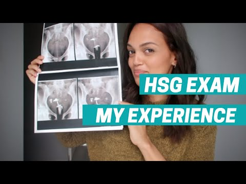 PCOS DIARY #4 HSG exam for IVF: My experience | Beforeduring-and-after my exam!
