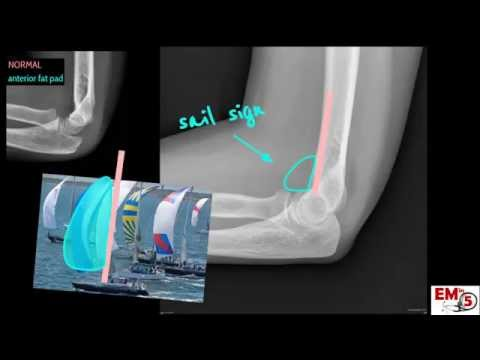 Elbow Xray Interpretation
