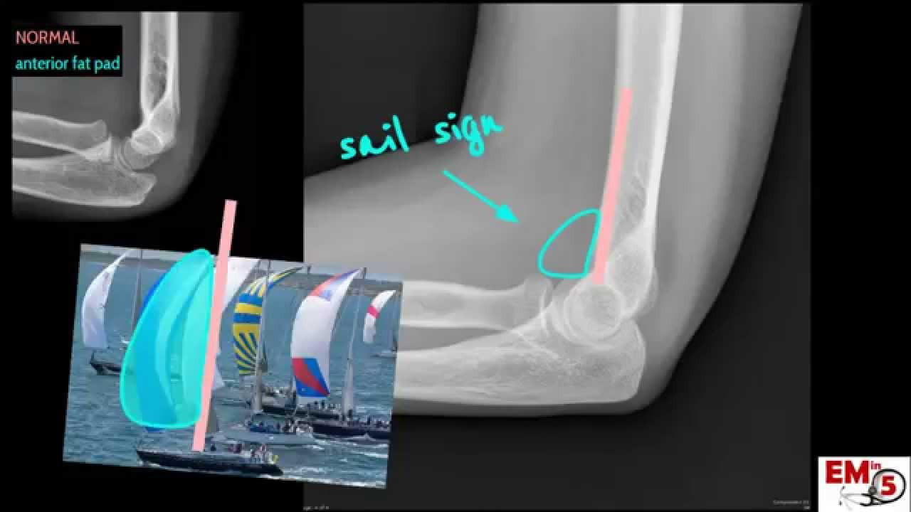 Elbow Xray Interpretation - YouTube