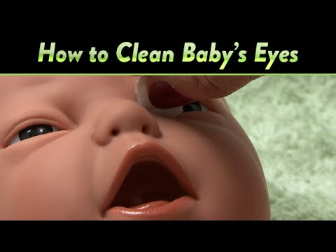 How To Clean Baby S Eyes And Clogged Tear Ducts Cloudmom Youtube