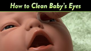 How to Clean Baby's Eyes and Clogged Tear Ducts | CloudMom