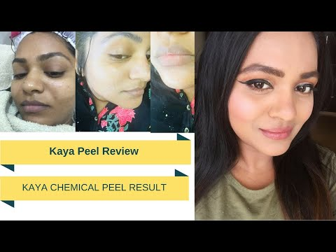 At home facial peel review images 127