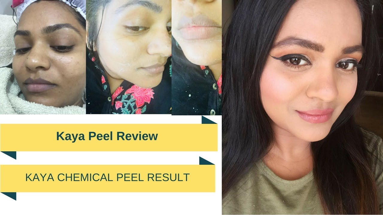 Kaya Skin Peel Treatment Review|Kaya Peel Experience