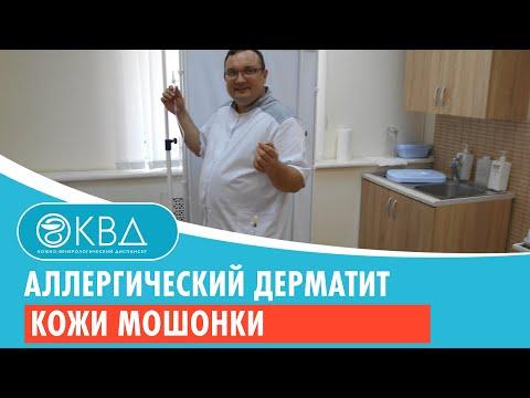 Аллергический дерматит кожи мошонки. Клинический случай №4