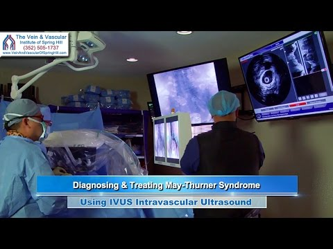 Iliac Vein Compression Treatment Using Volcano IVUS by Spring Hill Vascular Surgeon