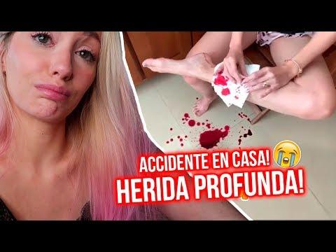 ACCIDENTE en CASA me PROVOCA HERIDA GRAVE! EL PEOR DÍA DE MI VIDA 😭   Katie Angel